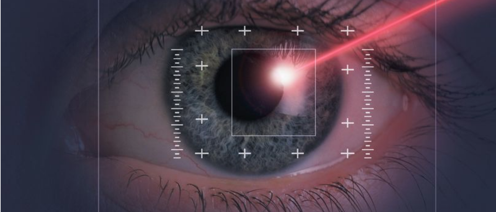 The Mirror ranks Laser Vision Scotland as one of the UK's best Laser Eye Clinics