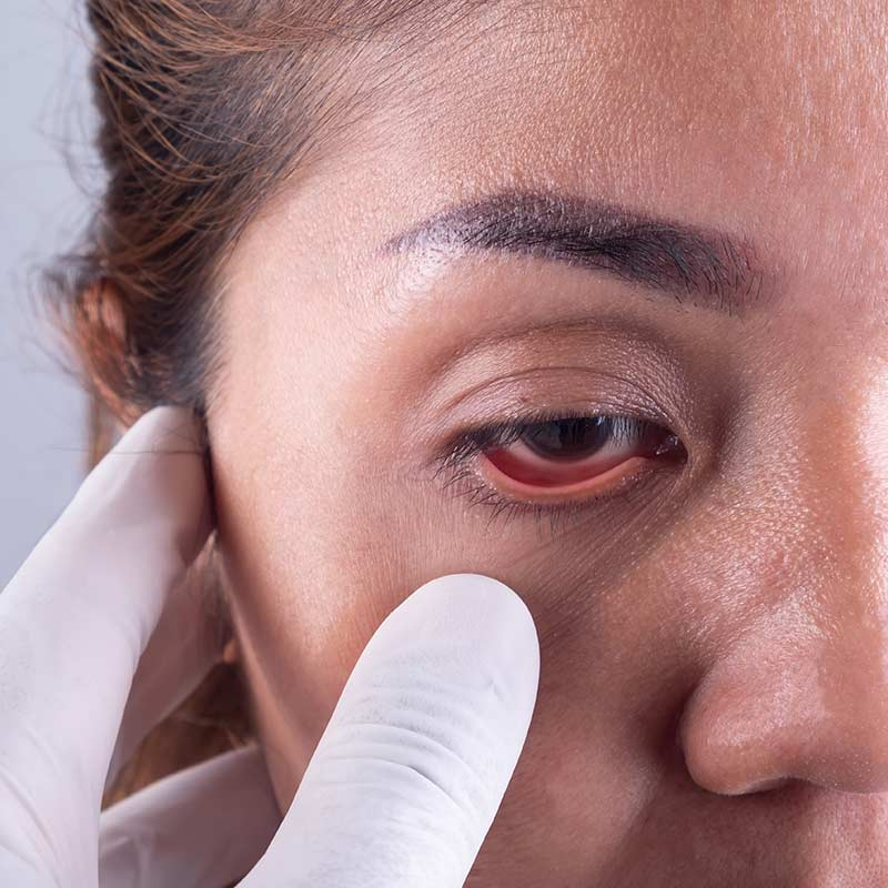 symptoms of allergic conjunctivitis