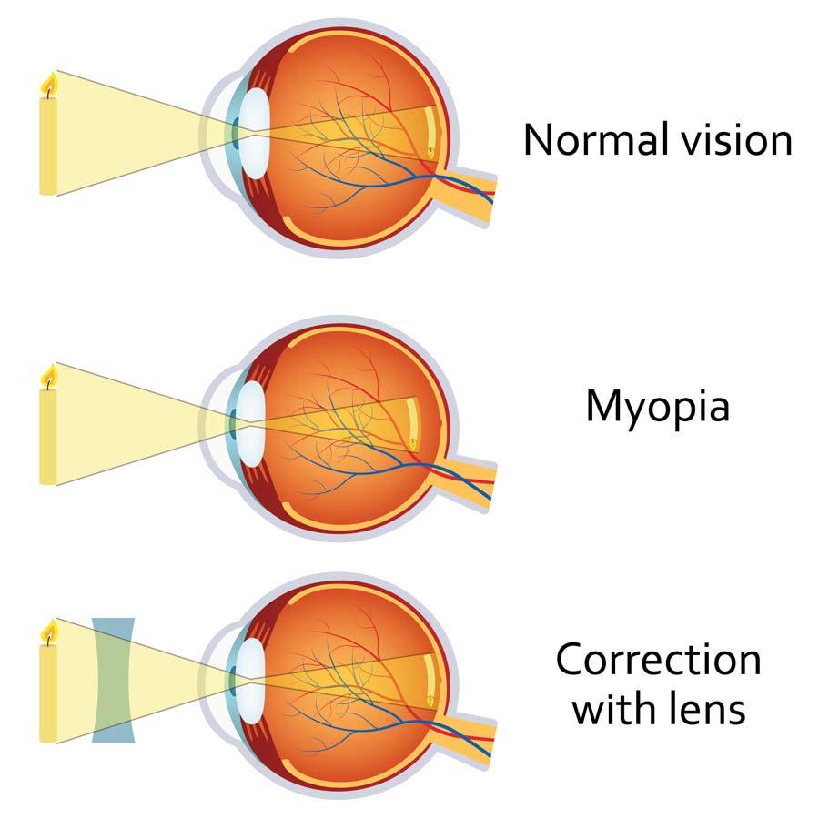 látás és fül-orr-gégészeti betegségek javítsa a látást torna segítségével